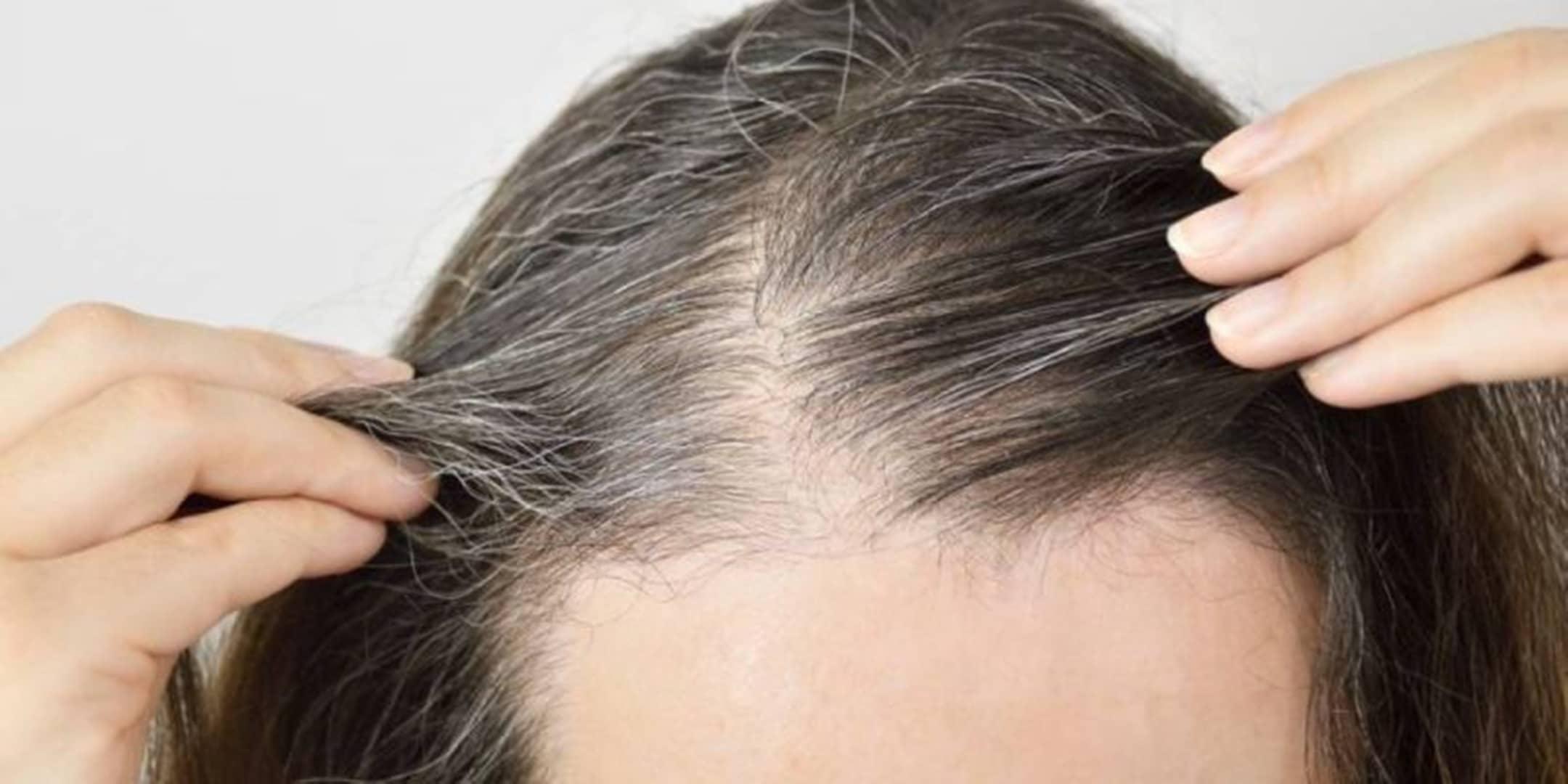 Hábitos que você pode fazer para evitar (e reduzir) os cabelos grisalhos