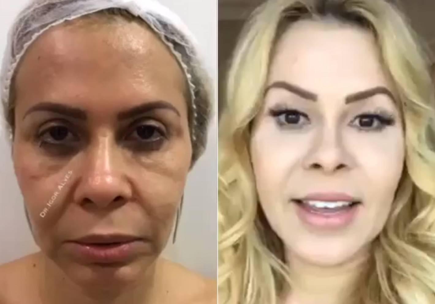 Conheça tudo sobre a harmonização facial, a febre entre os famosos