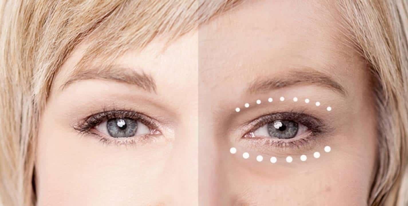 Máscara caseira anti-rugas para o contorno dos olhos