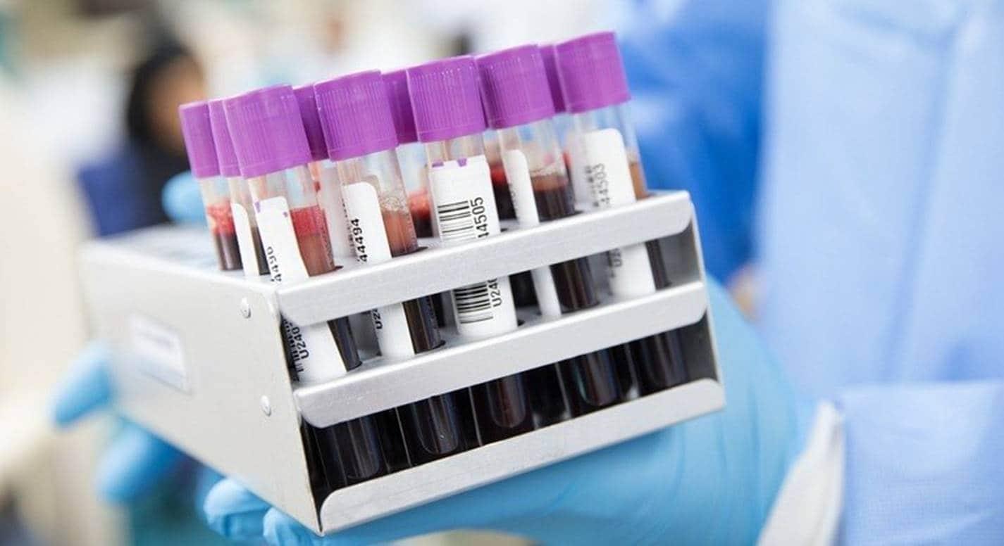 Exame de sangue revolucionário é capaz de detectar mais de 50 tipos de câncer
