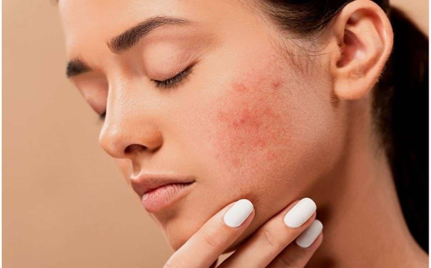 Você sabe o que é rosácea e como tratar esse problema na pele?