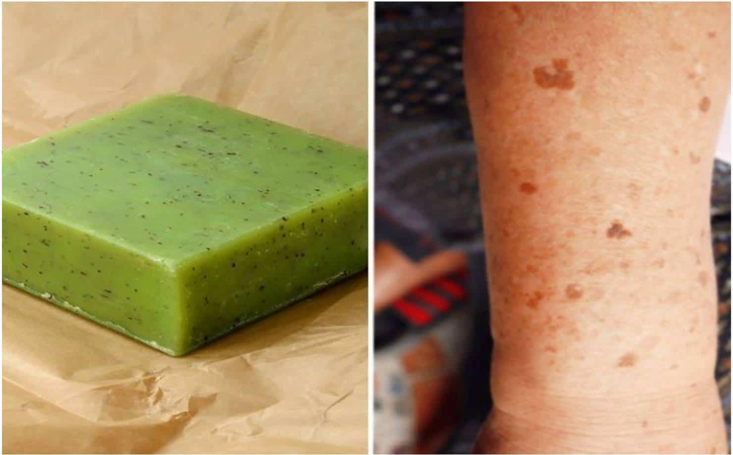 Reduza as manchas na pele com este sabonete caseiro