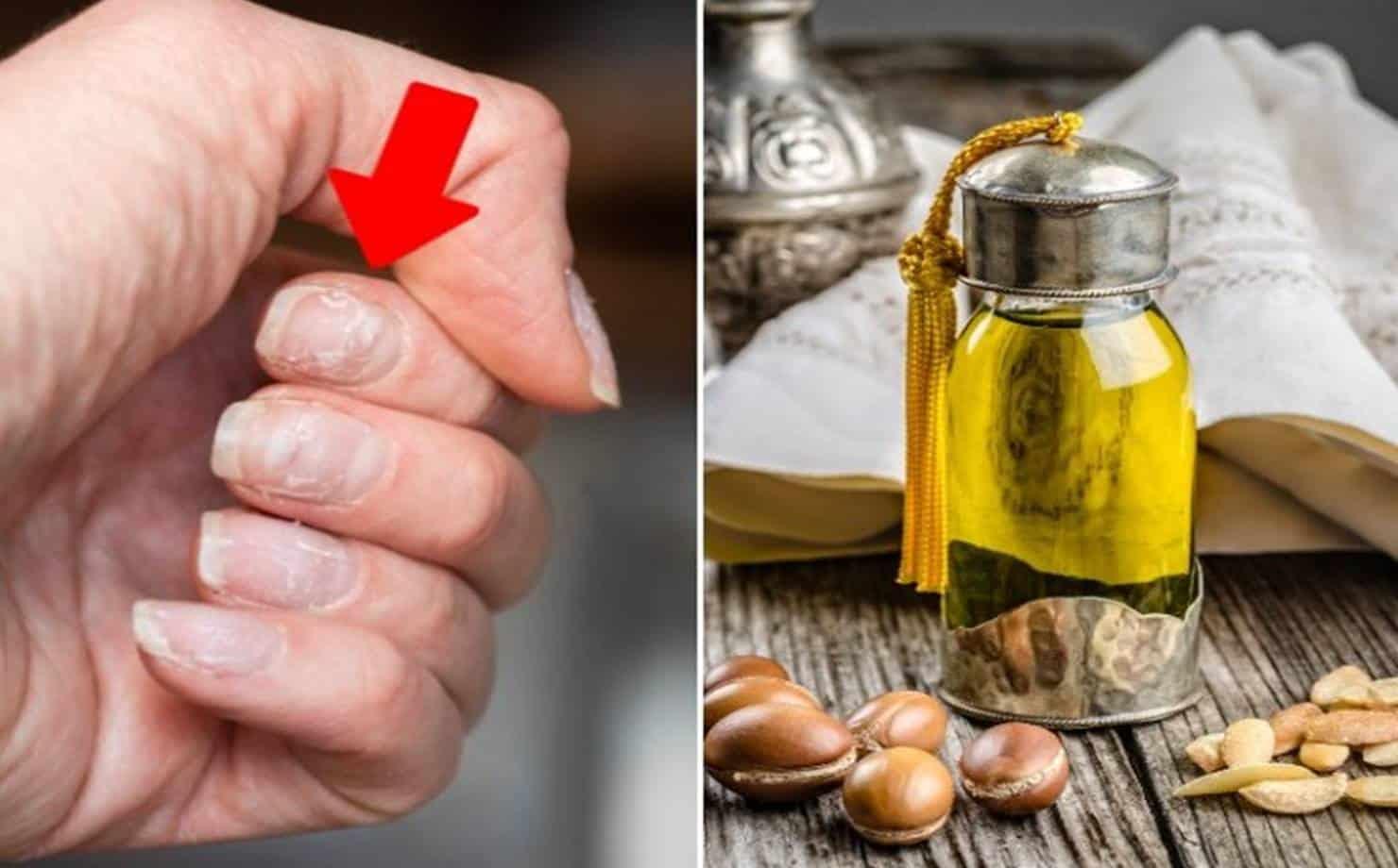 Unhas Fracas e óleo de Argan para Fortalecer