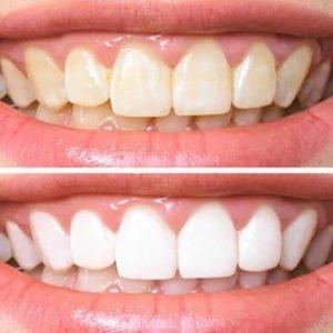 Dentes Brancos e amarelos